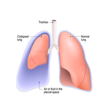 Collapsed lung. abnormal collection of air (pneumothorax) or fluid (pleural effusion) or pus (empyema) in the pleural space between the lung and the chest wall. Stock Illustratie
