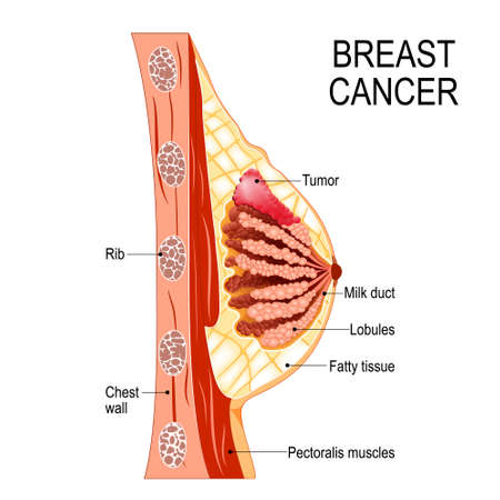Breast cancer. Cross-section of the mammary gland with tumor. Human anatomy. Vector diagram for medical use. Illustration