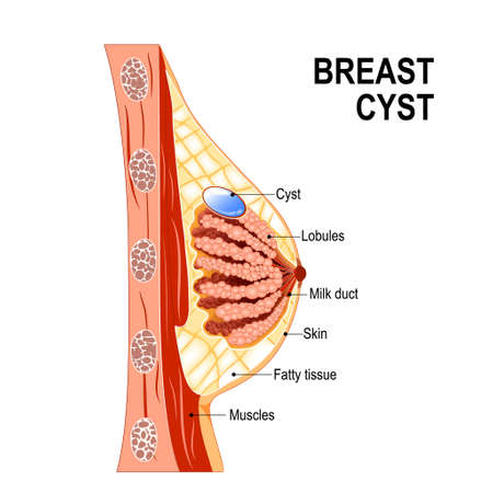 Breast Cyst. Cross-section Of The Mammary Gland With Fluid-filled ...