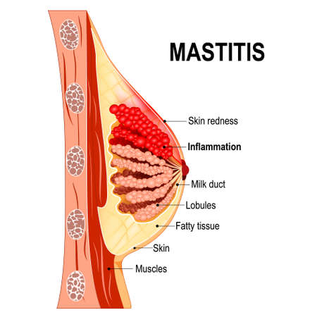Mastitis. Cross-section of the mammary gland with inflammation of the breast (abscess formation). Women's Health. Human anatomy. Vector diagram for medical use.