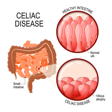 Celiac disease. Small intestinal with normal villi, and villous atrophy. Diagram showing changes in intestinal. Celiac disease manifested by blunting of villi. Фото со стока - 93463528