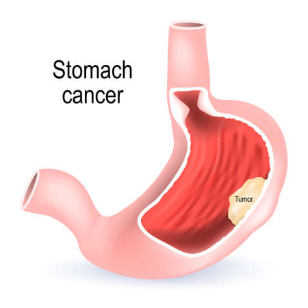 Stomach cancer. Cross section of the stomach with tumor inside