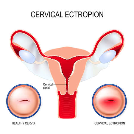 Cervical ectropion (cervical eversion) It is a condition in which cells that normally line the inside of the cervical canal extend on to the surface of the cervix. Human uterus, healthy cervix and cervical erosion, it looks like early cervical cancer.