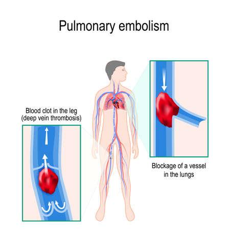 Lungenembolie. Menschliche Silhouette mit hervorgehobenem Kreislaufsystem. Nahaufnahme: Blutgerinnsel im Bein (tiefe Venenthrombose) und Verstopfung eines Gefäßes in der Lunge Vektorgrafik