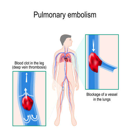 Pulmonary embolism. Human silhouette with highlighted circulatory system. Close-up: Blood clot in the leg (deep vein thrombosis), and Blockage of a vessel in the lungs Illustration