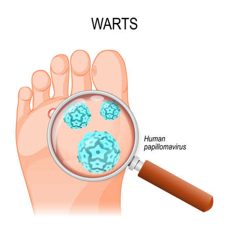 Foot Warts are caused by infection with a type of human papillomavirus.