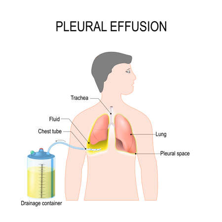 Pleural effusion. Diagram showing human silhouette with highlighted lungs, fluid buildup in the pleura, Chest Tube, and Drainage container. Treatment of tension hydrothorax (or hemothorax) insertion of chest tubes for invasive procedure to remove fluid Illustration