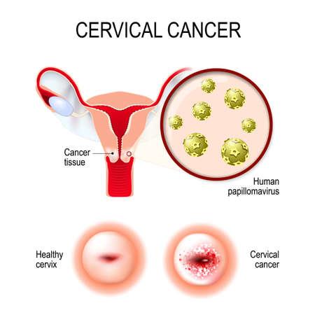 Gebärmutterhalskrebs. Vektor-Illustration der Gebärmutter und des Gebärmutterhalses. Nahaufnahme der humanen Papillomavirus-Infektion (HPV), die Krankheiten verursacht.