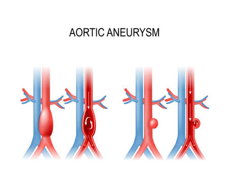 Types of abdominal aortic aneurysm. normal aorta, and enlarged vessels. Vector illustration for medical use