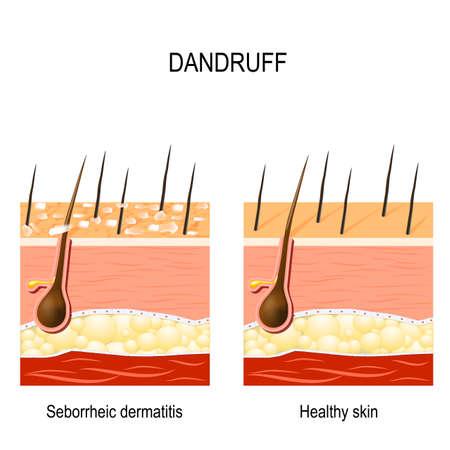 Schuppen. Durch trockene Haut, Bakterien und Pilze auf der Kopfhaut kann es zu einer seborrhoischen Dermatitis kommen. Es entstehen trockene Hautschüppchen. Vergleiche normales und abnormales Haar auf der Haut