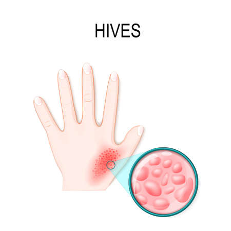 skin rash. Hives or urticaria. hand of the patient and magnification skin with red itchy bumps. Skincare Stock Vector - 98125030