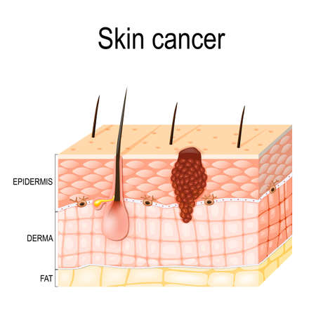 A skin cancer originates from melanocytes.