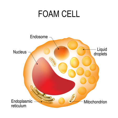 Structure of the foam cell. Foam cell is a swollen macrophage filled with lipid inclusions. This cell serve as the hallmark of early stage atherosclerotic lesion formation. Cholesterol-loaded cells (foam cells) make plaque unstable, leading to heart attacks and strokes.  イラスト・ベクター素材