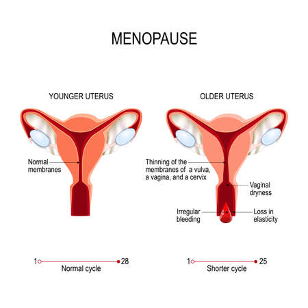 Younger and older women uterus. Menopause or climacteric. Vector diagram for medical use Ilustração