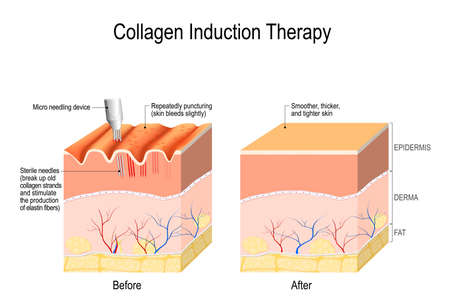 Collagen induction therapy (microneedling) is a surgical for remove wrinkles, scars, stretch, marks, pigmentation. skin needling procedure, repeatedly puncturing the skin with tiny, sterile needles (microneedling the skin). Stock Vector - 101213810