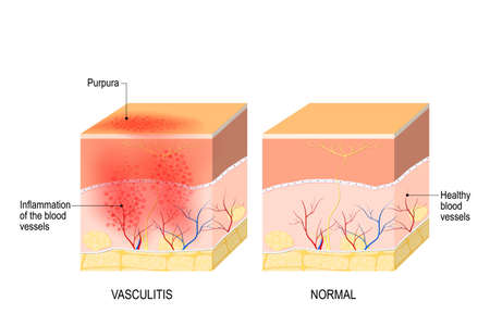 Vasculitis is damange of blood vessels by inflammation. Cross section of the human skin with vasculitis, and part of skin with healthy blood vesselss