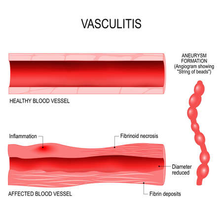 Vasculitis is damange of blood vessels by inflammation. Cross section of the affected, and healthy blood vessel. aneurysm formation Illustration