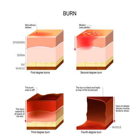 skin burn. four degrees of burns. type of injury to skin. step of burn Vectores