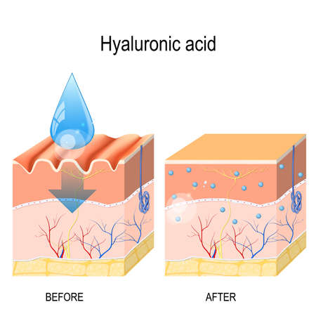 Hyaluronic acid. skin-care products. skin rejuvenation with help of hyaluronic acid Standard-Bild - 101909549