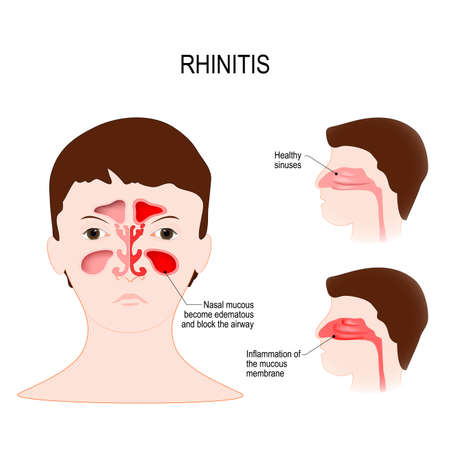 Rhinitis (coryza) is irritation and inflammation of the mucous membrane inside the nose. healthy sinuses and sinuses with inflammation of the mucous membrane
