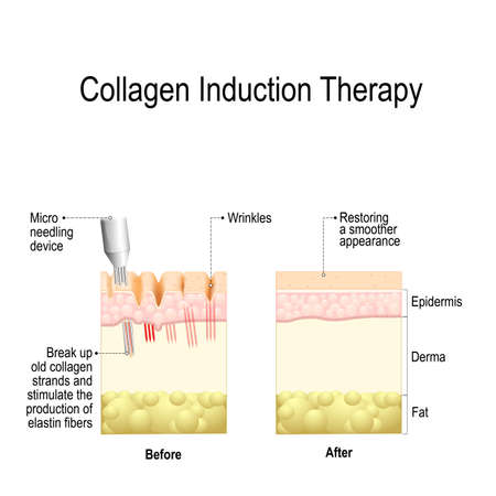 Collagen induction therapy (microneedling) is a surgical for remove wrinkles, scars, stretch, marks, pigmentation. skin needling procedure, repeatedly puncturing the skin with tiny, sterile needles (microneedling the skin). Archivio Fotografico - 102565769