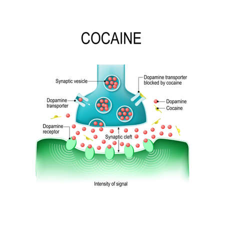 Cocaine causes dopamine buildup in the synapseIn. Cocaine blocks the dopamine transporter, and causing an intensified response within the receiving cell.