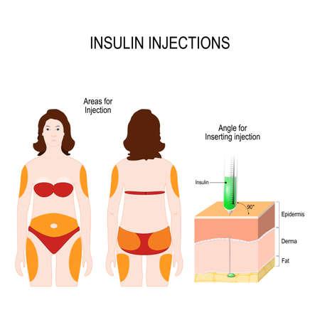 Suikerziekte. insuline-injecties. Hoek voor het inbrengen van injectie en gebieden voor insuline-injectie. vectorillustratie voor medisch gebruik Vector Illustratie