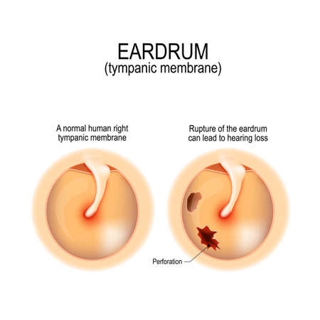 Ruptured Eardrum Anatomy Of The Humans Eardrum Healthy And