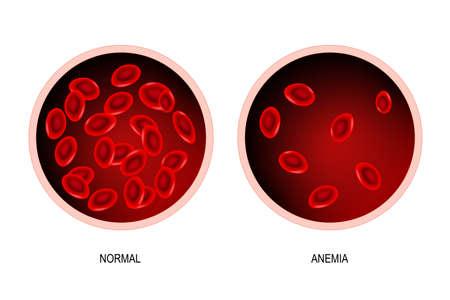 bloed van gezonde mens en bloedvat met bloedarmoede. Bloedarmoede is een afname van de totale hoeveelheid rode bloedcellen of hemoglobine in het bloed. Vector illustratie.