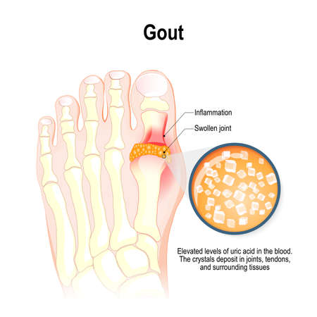 Gout is a form of inflammatory arthritis. Characterized by elevated levels of uric acid in the blood. This uric acid crystallizes and the crystals deposit in joints, tendons, and surrounding tissues. Vector illustration for medical use.