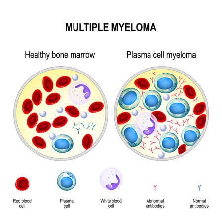 Multiple myeloma is a cancer of the bone marrow. healthy plasma cells in the bone marrow mutate and multiply uncontrollably. Myeloma cells suppress the growth of healthy cells that make blood. malignant plasma cells produce a paraprotein (inactive antibody or M protein) Illustration