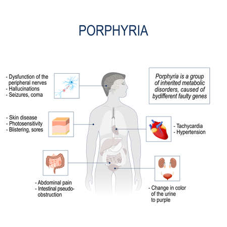 Porphyria is a group of inherited metabolic disorders, caused of bydifferent faulty genes. Signs and symptoms. infographic, pain location. Vector illustration for medical use.