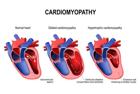Rodzaje chorób serca: kardiomiopatia przerostowa i kardiomiopatia rozstrzeniowa. zdrowe serce i serce z patologią. ilustracji wektorowych do użytku medycznego