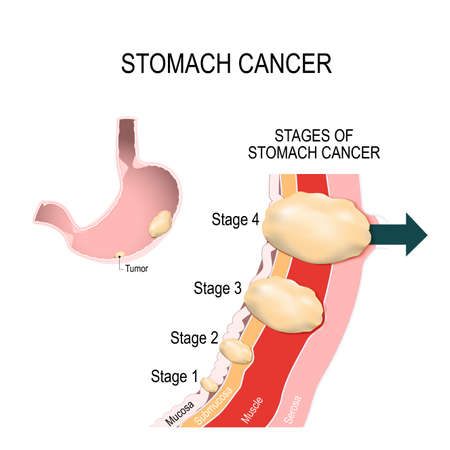 The clinical stages of stomach cancer. Classification of Malignant Tumours. Vector illustration for medical use