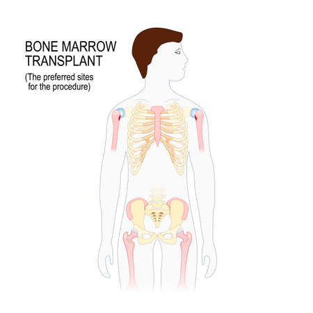 bone marrow transplant. The preferred sites for the transplantation procedure (Sternum, iliac crest, tibia or femur). man silhouette with highlighted sites of the skeleton. Vector illustration for medical and educational use