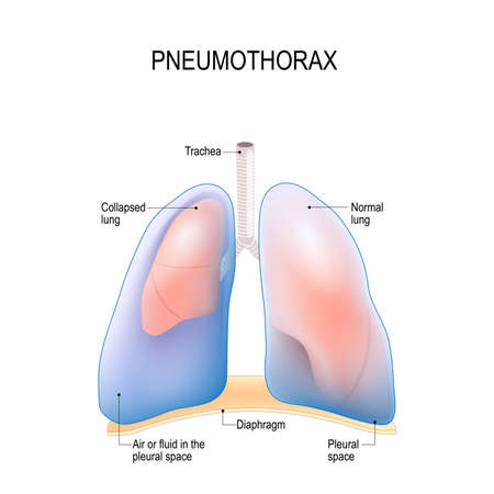 Collapsed lung. abnormal collection of air (pneumothorax) or fluid (pleural effusion) or pus (empyema) in the pleural space between the lung and the chest wall. Vectores