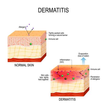 Dermatitis atópica (eccema atópico). Piel sana y sección transversal de piel humana con dermatitis. mostrando cambios y diferencias. Ilustración de vector para uso médico y educativo