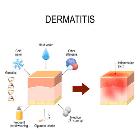 Atopic dermatitis (atopic eczema). Healthy skin, factors that cause disease, and cross-section of human skin with dermatitis. Vector illustration for medical and educational use