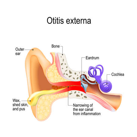 Swimmers ear. Otitis externa is inflammation of the ear canal. Human anatomy. Vector illustration for medical use