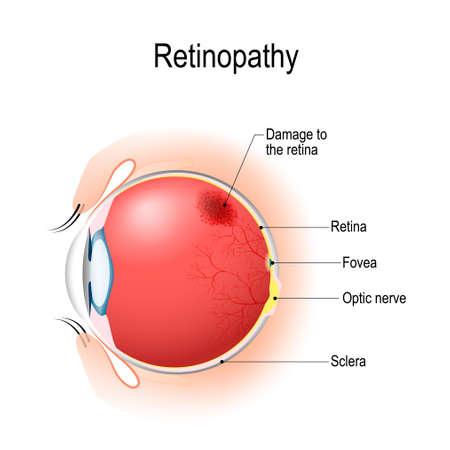 Retinopatia to uszkodzenie siatkówki oczu, które powoduje upośledzenie wzroku. Anatomia ludzkiego oka. Przekrój pionowy oka i powieki. Schemat. szczegółowa ilustracja.