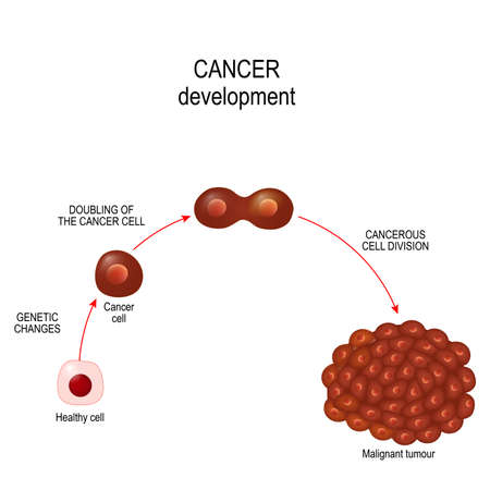 Cancer cell. illustration showing cancer disease development. Vector diagram for your design, educational, science and medical use