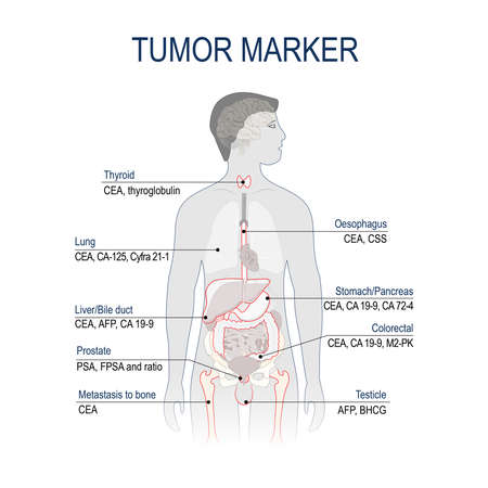 Tumor marker or biomarker. Cancer Development. Vector diagram for science and medical use 矢量图像
