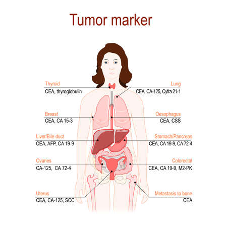 Tumor marker or biomarker. Cancer Development. silhouette of a woman with (highlighted in red) internal organs. Vector diagram for science and medical use.