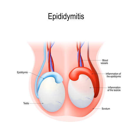 Epididymitis is inflammation of the epididymis of the testicle. Illustration of an adult human testicles. Vector diagram for science and medical use.