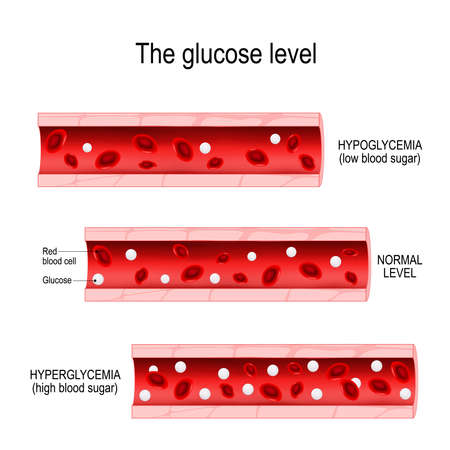Glucose in the blood vessel. normal level, hyperglycemia (high blood sugar), hypoglycemia (low blood sugar). Vector diagram for your design, educational, science and medical use Illusztráció