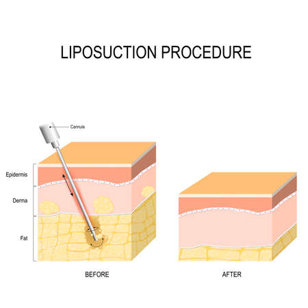 liposuction procedure. Before and after. fat modeling and surgery. Vector diagram for scientific and medical use Çizim