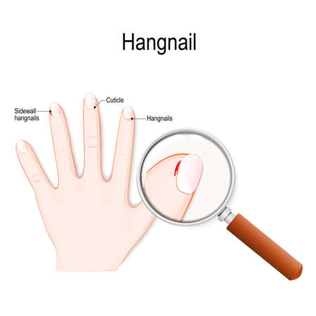 finger has a hangnail. Hangnail is a small piece of torn skin along fingernails, and toenails (result of dry skin or nail biting). Vector diagram for medical use