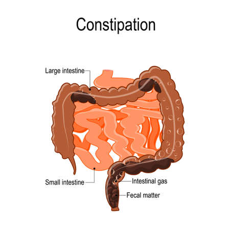 Constipation. Vector illustration represent the human intestine (large and small) with fecal matter and bowel gas bubbles