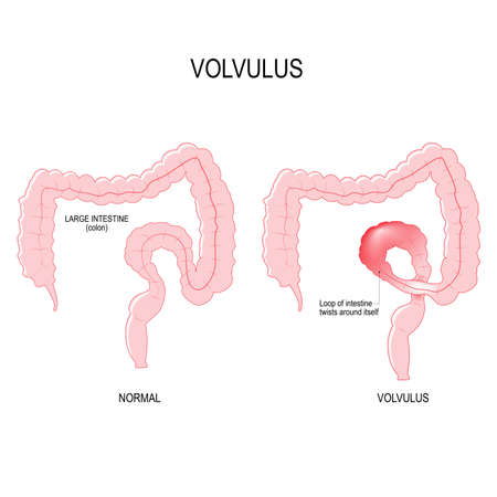 Volvulus is a loop of intestine twists around itself. anatomical of the colon. Close-up of the large intestinal. Vector illustration for biology, scientific, and medical use.