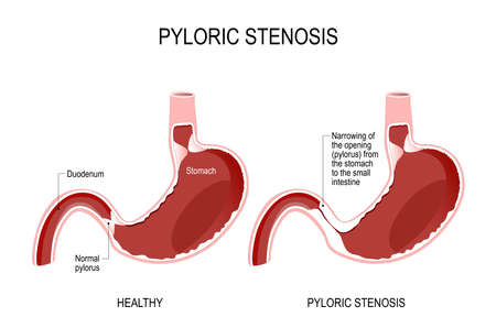 Pyloric stenosis is a narrowing of the opening (pylorus) from the stomach to the small intestine. anatomical locations the pylorus. stomach of the human. Vector illustration for biology, scientific, and medical use.